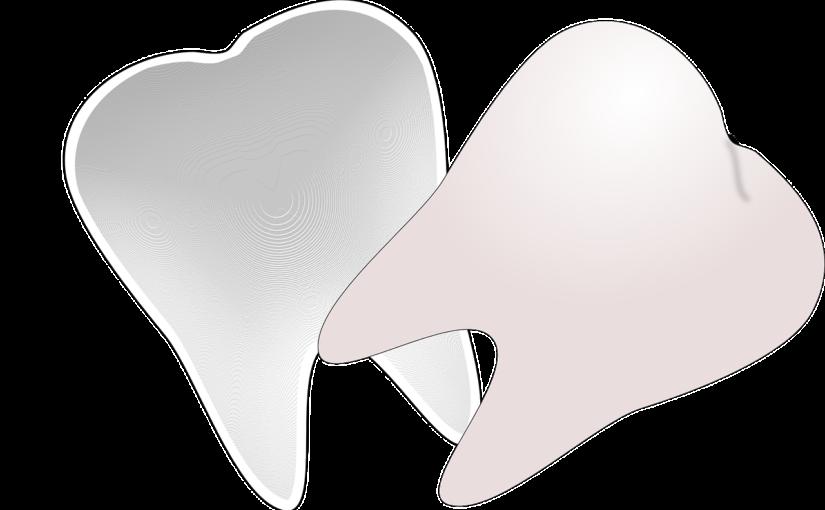 Prześliczne nienaganne zęby dodatkowo powalający uroczy uśmiech to powód do płenego uśmiechu.