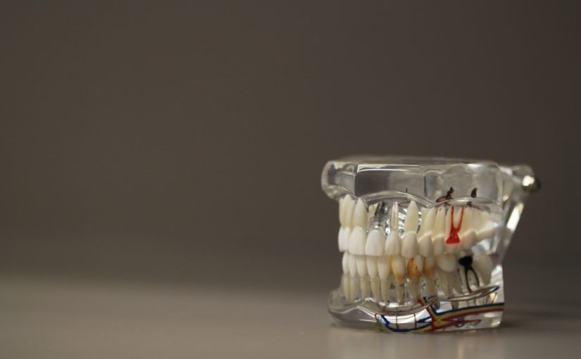 Zła metoda odżywiania się to większe deficyty w ustach a również ich brak